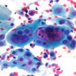 Лейкоциты в мазке на флору и их расшифровка